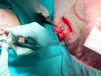 prótesis de titanio